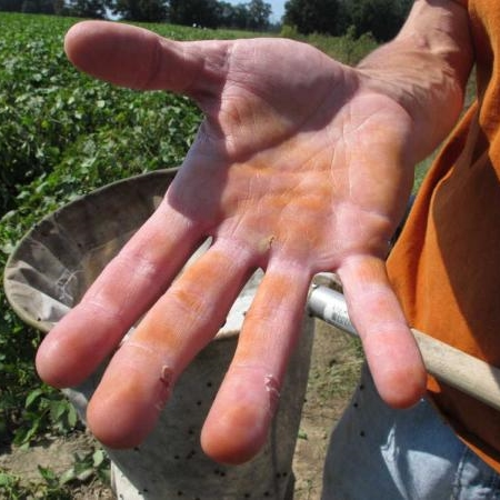 Orange discoloration from handling kudzu bugs Photo: Nick Seiter, Clemson University
