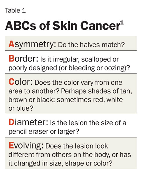 Have a mole or freckle you have your eye on? Know your ABC's and get to your dermatologist ASAP!