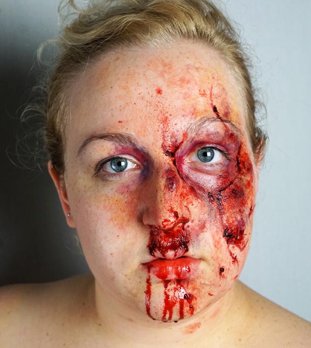 Trauma3_web.jpg
