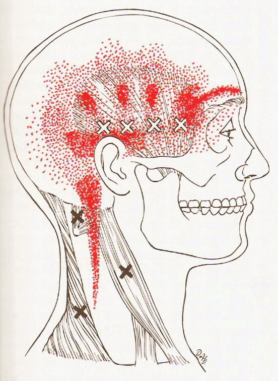 Some headache trigger points.