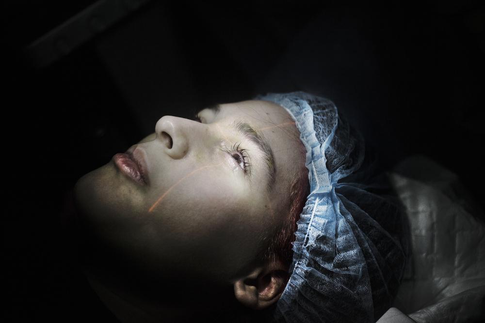LASIK & Laser Eye Surgery