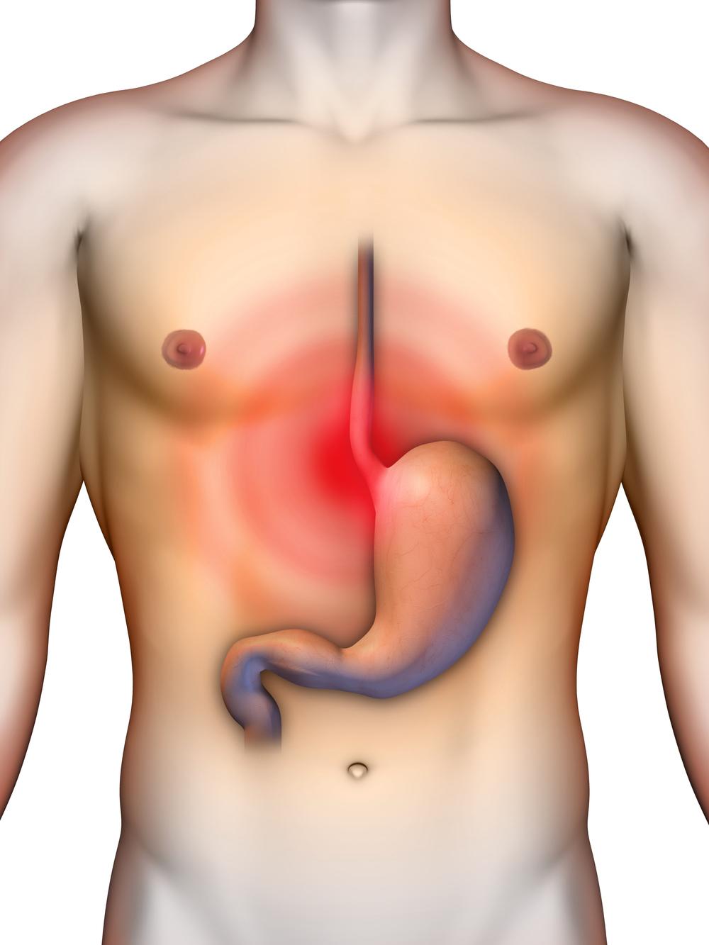 Digestion - Acid Reflux - GERD