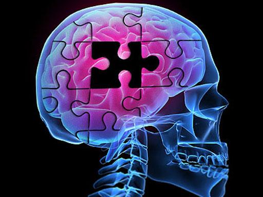 Alzheimer's Part 3
