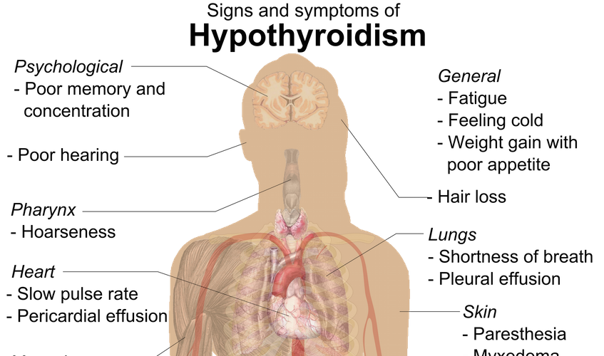 hypothyroidism - the hidden epidemic part 2