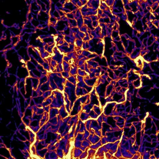 Blood vessel network analysis -