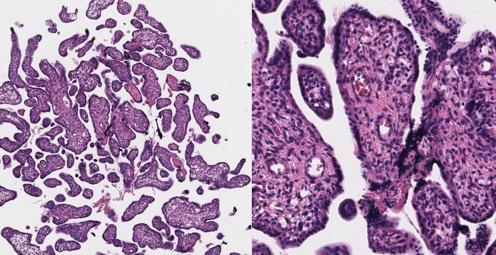 H&E of Human Placenta Tissue