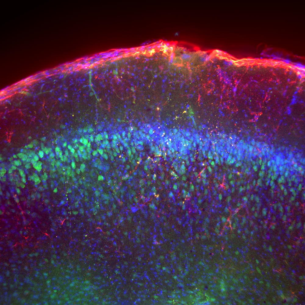 Z Projections - GFAP, NeuN, DAPI, Mouse Brain