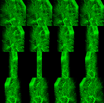 Figure       SEQ Figure \* ARABIC     1      .  3D projections from various angles of Brain Section labeled with Tomato Lectin-FITC 100um optical section with cubic voxels