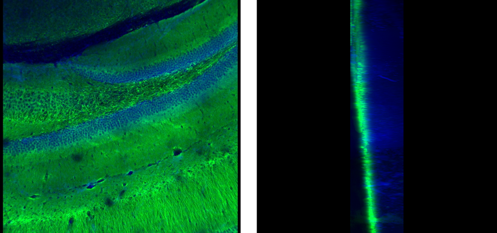 Left: Antibody Label – Green, Nuclear Stain – Blue, X Y View. Right: Antibody Label – Green, Nuclear Stain – Blue, Z Y View