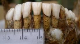 grants-teeth.jpg