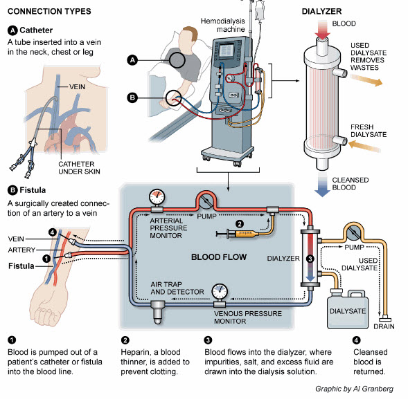 How Dialysis Works.jpg