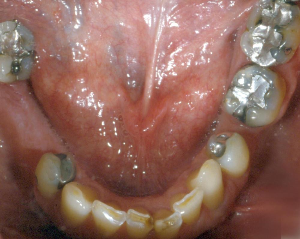 Check for Missing Teeth Mandibular