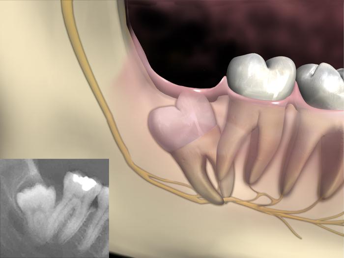 Distoangular 3rd Molar Impaction