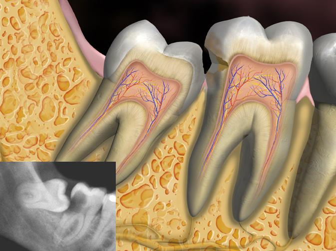 2nd Molar Caries