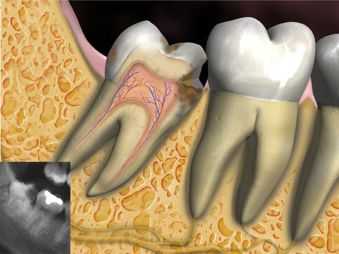 3rd Molar Caries