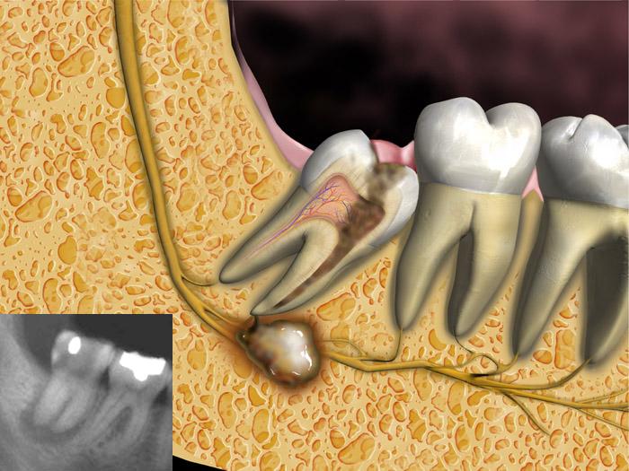 3rd Molar Dental Abscess