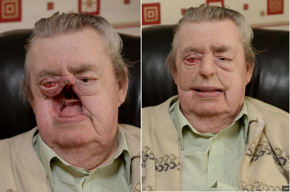Reconstructive Scientist scans son's face to 3D print a prosthesis for his dad (Photo Credit: 3Dprint.com)