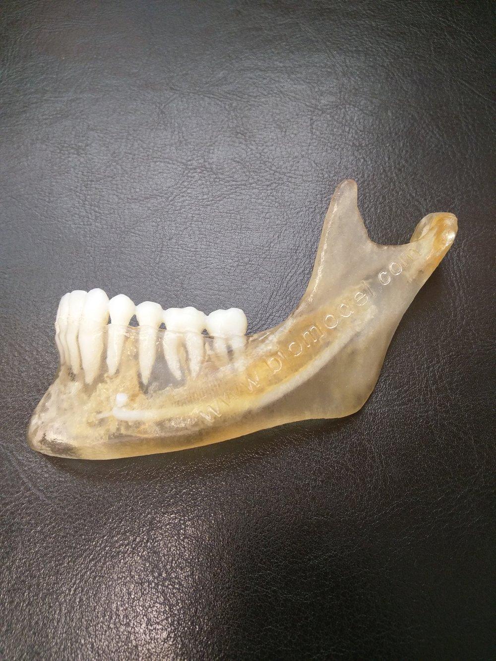 Sterilizable Medical grade 3D Print materials