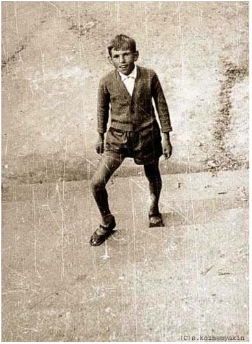 An old photo of a young boy with Rickets.  Photo Credit: Sergey Kozhemyakin/ Foxtongue via Compfight