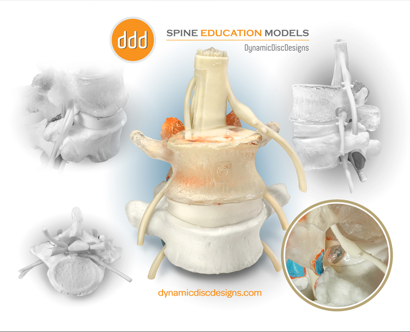 Spine-Education-Models-Dynamic-Disc-Designs-Corp..jpg