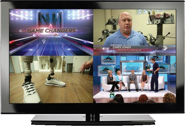 Rebound Prosthetics - TV