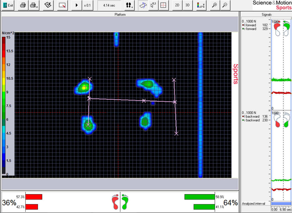 A before foot pressure scan of an injured golfer working with Float Sting