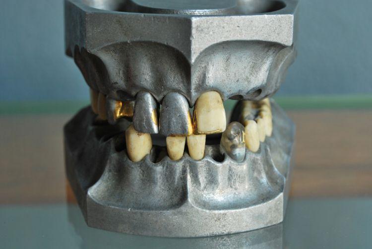 teethset4.jpg