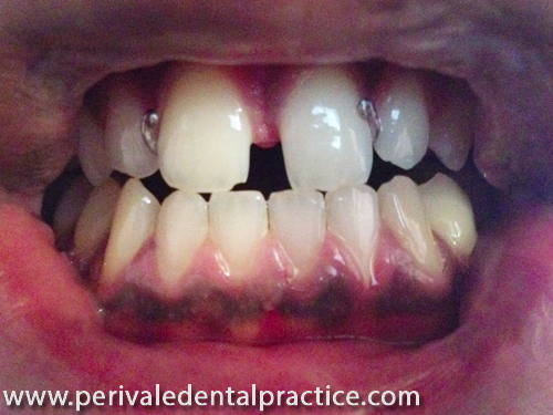 Beginning of cosmetic dental treatment