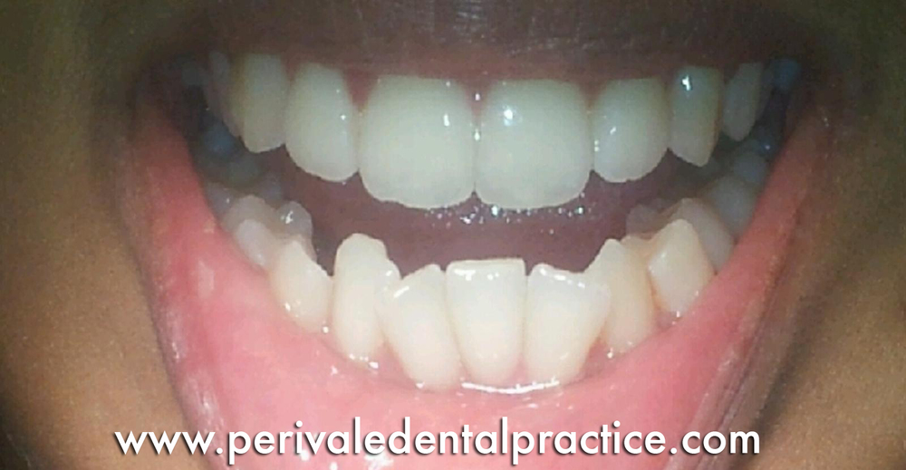 Before teeth straightening treatment