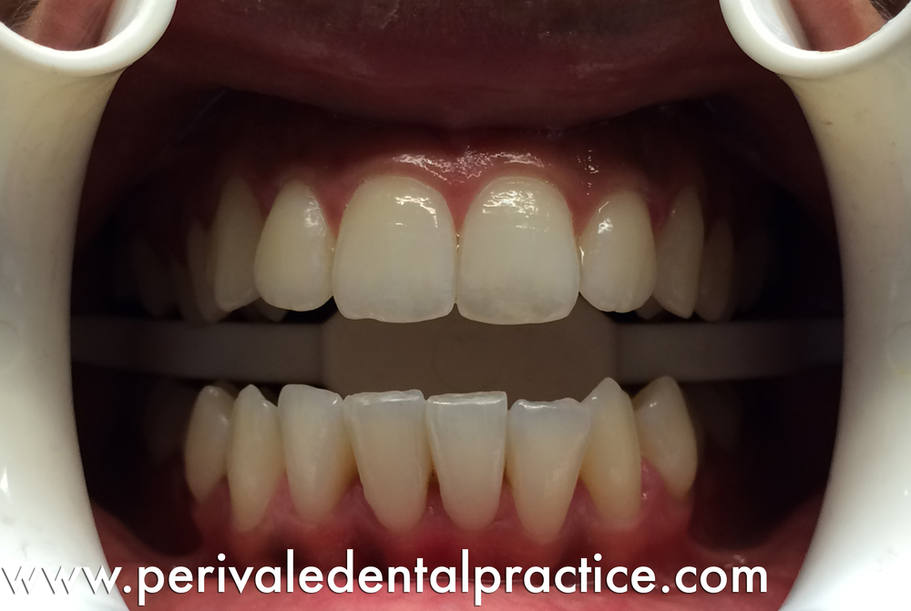After teeth straightening treatment