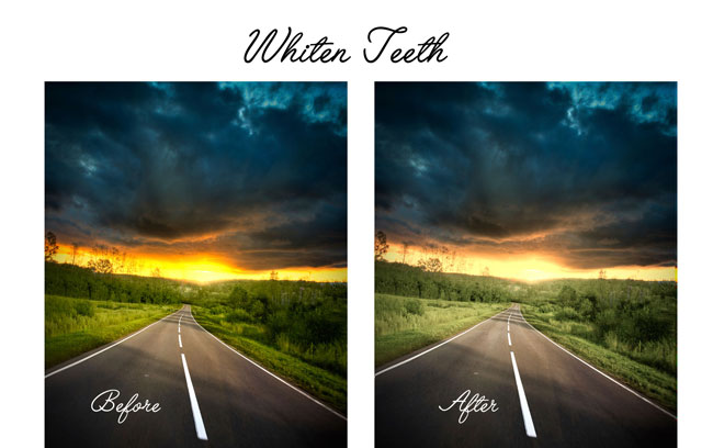 whiten-teeth-sunset