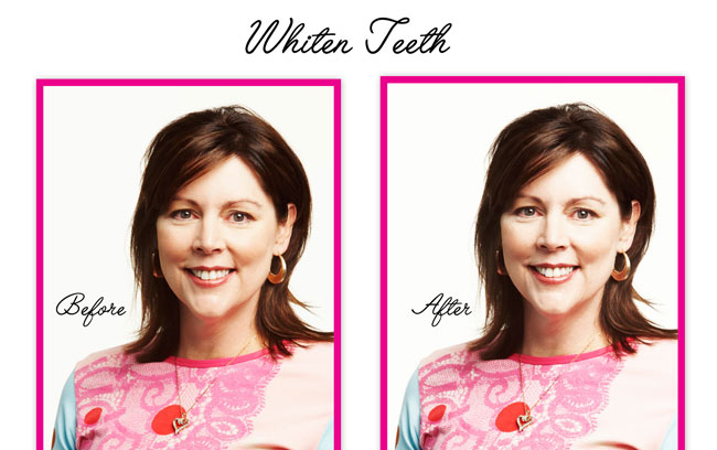 whiten-teeth-lady