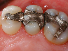 Silver Filling Removal