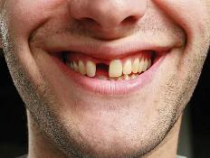 Missing Teeth Options