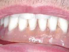 Lower Denture Problems