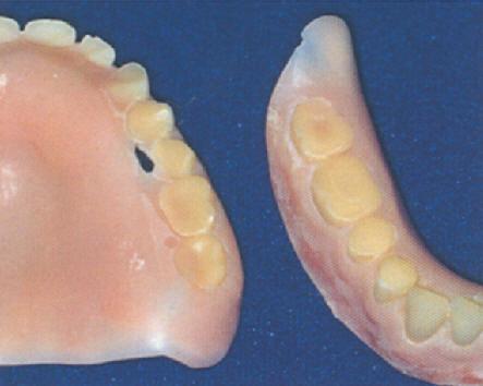worn denture.jpg