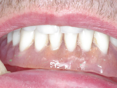 lower denture.jpg