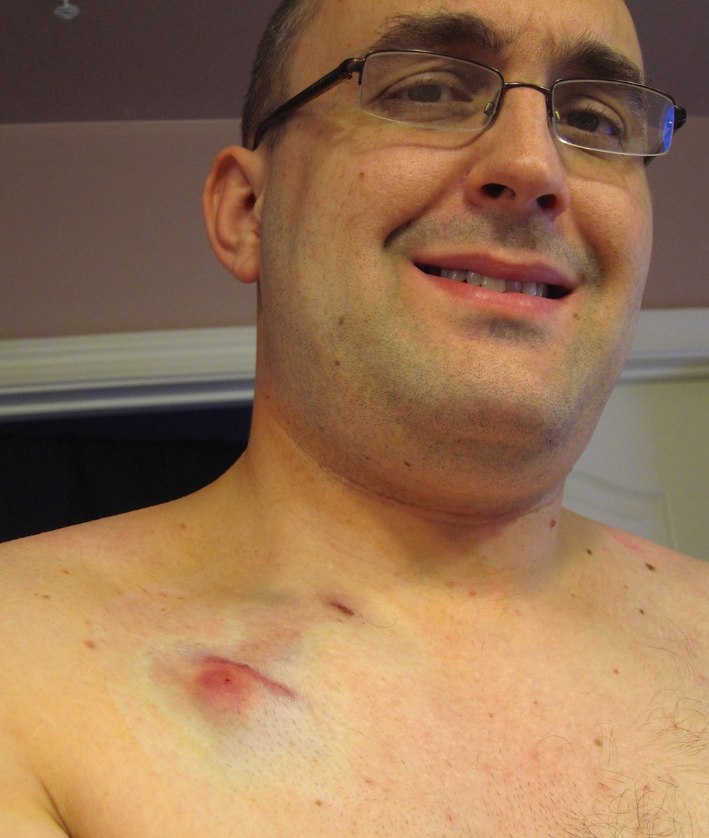 Getting my Mediport placed, just days before starting chemotherapy on March 14th, 2011.