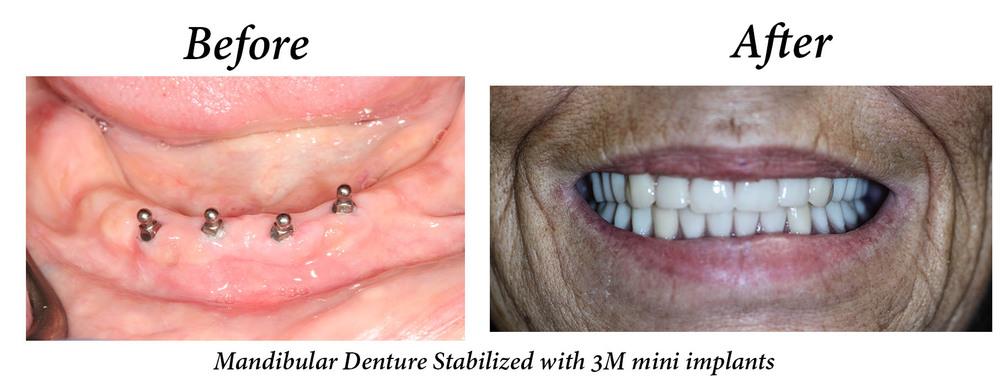 Denture 2.jpg