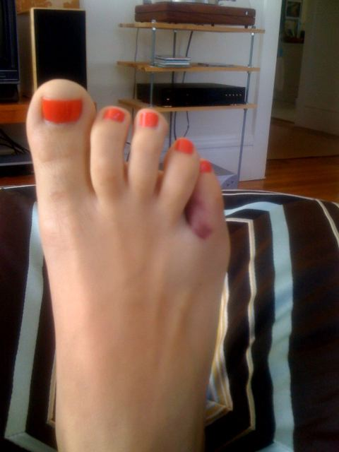 Toe might be broken. Apparently if you try pulling on it, you can find out for sure, but if I pull on it, I might wretch.