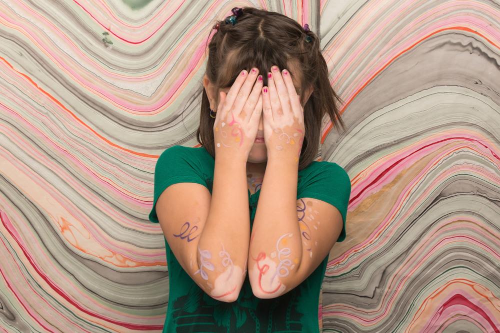 Vitiligo face.jpg