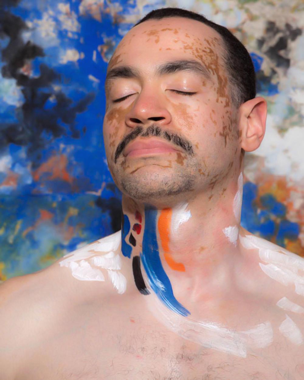 Vitiligo portrait Detroit ii.jpg