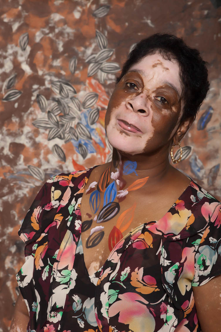 Vitiligo Portrait grand ma 2.jpg