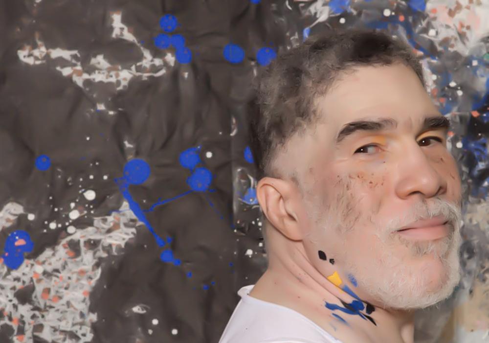 Vitiligo portrait Jim.jpg
