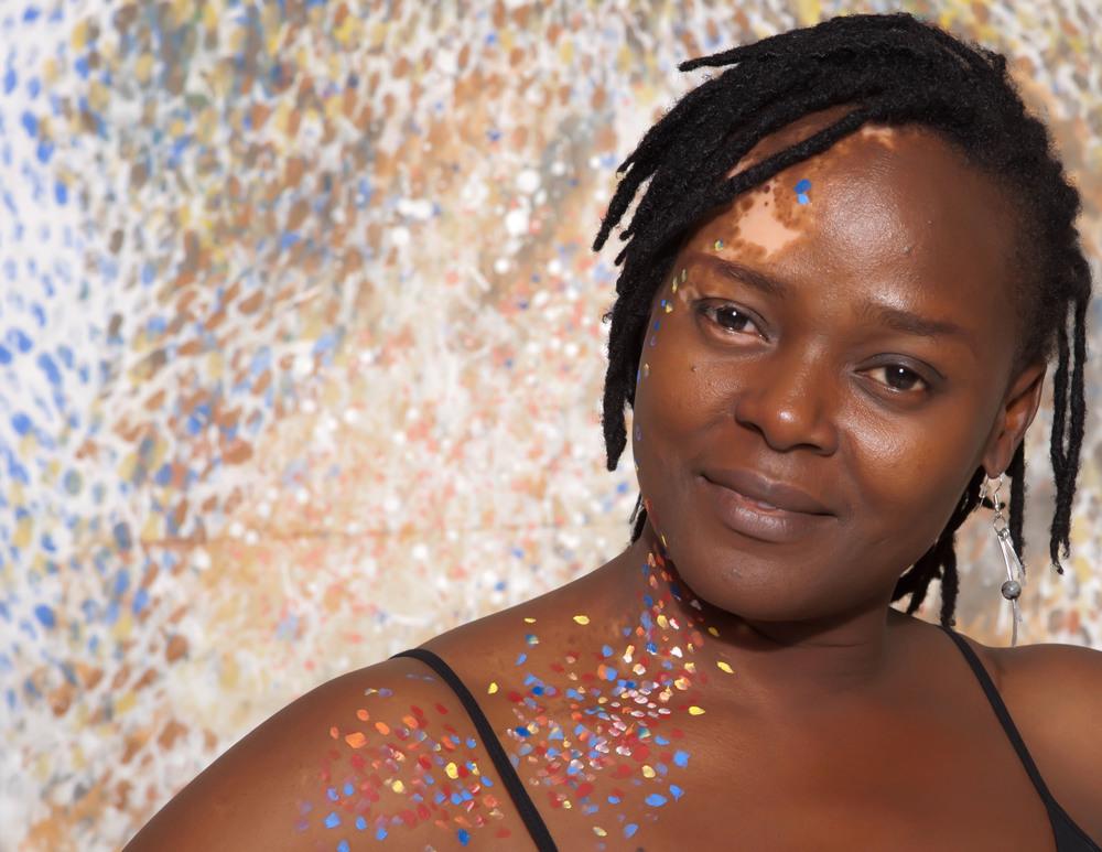Vitiligo portrait Ogo Maduesi (20 of 1).jpg