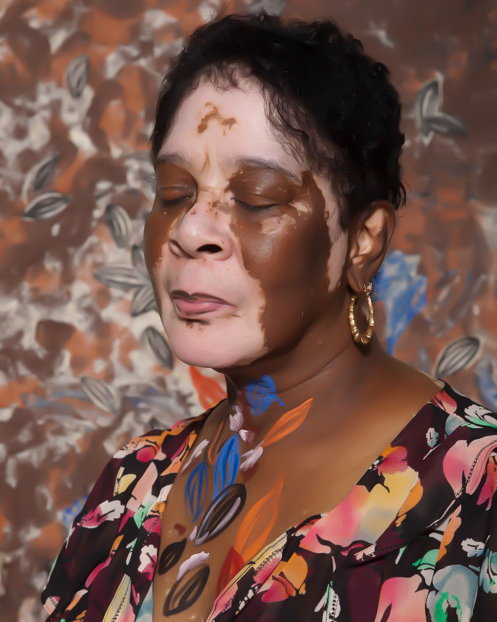 Vitiligo portrait grand ma 1.JPG