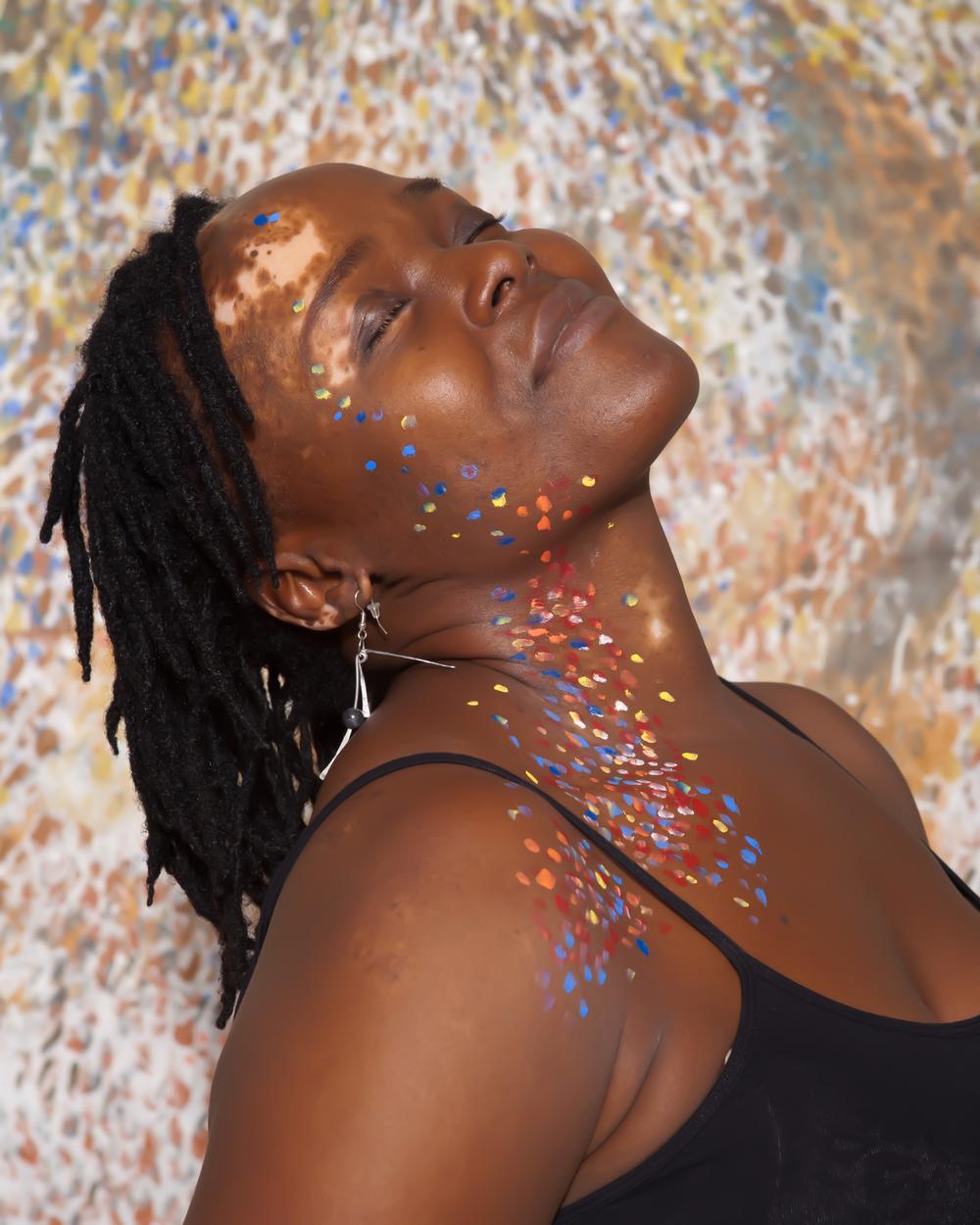 Vitiligo portrait Ogo Maduesi.jpg