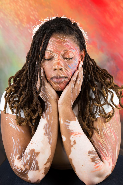 Vitiligo portrait Telisha i.jpg