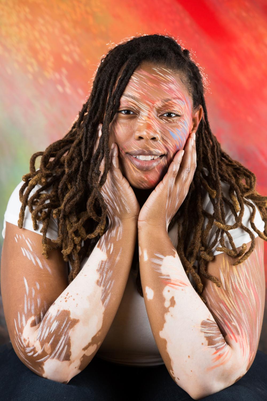 Vitiligo portrait Telisha ii.jpg