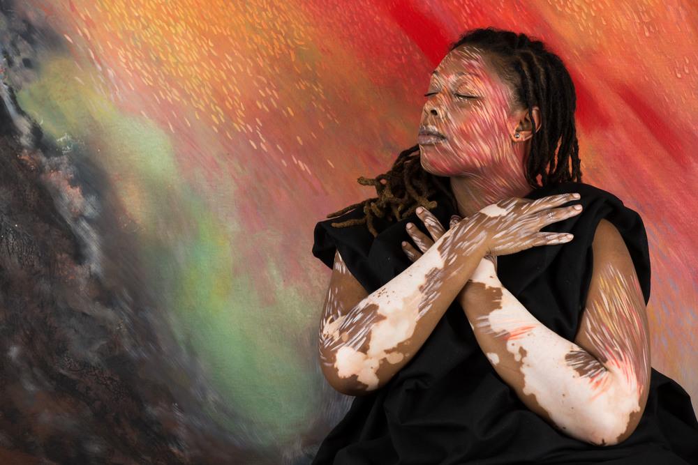 Vitiligo portrait Telisha.jpg